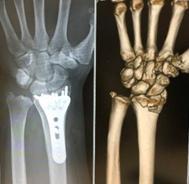 橈骨遠位端骨折(手首の骨折)