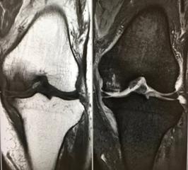 特発性膝関節骨壊死