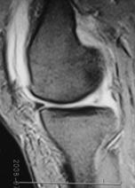 内側半月板後節損傷