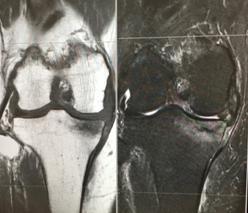 膝関節周囲脆弱性骨折