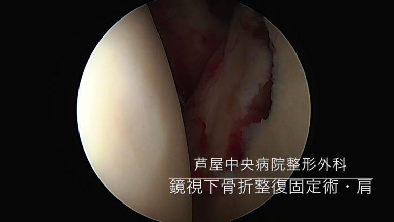 9鏡視下骨折整復固定術・肩の写真