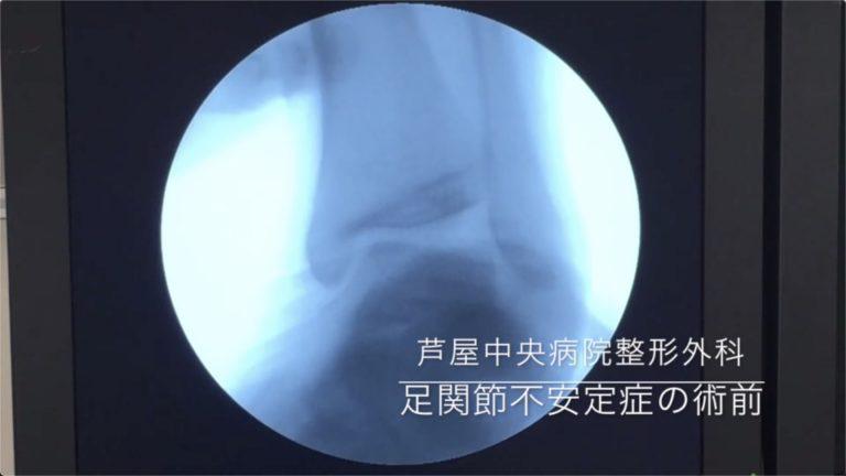 17足関節不安定症の術前後比較