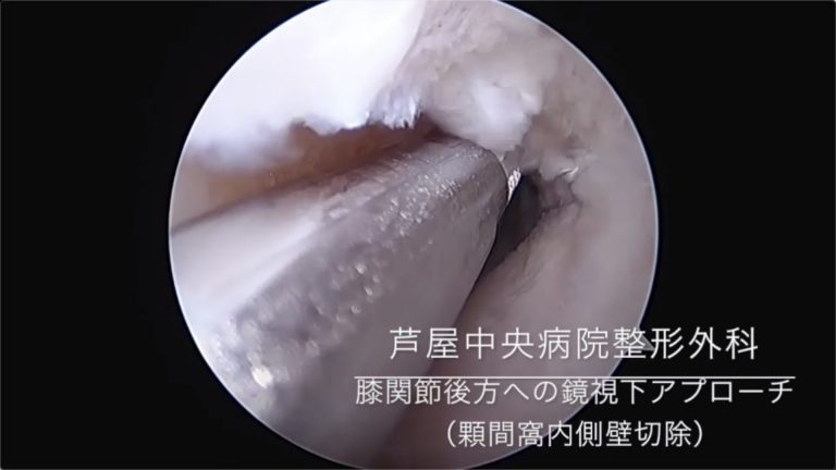 膝関節後方への鏡視下アプローチ