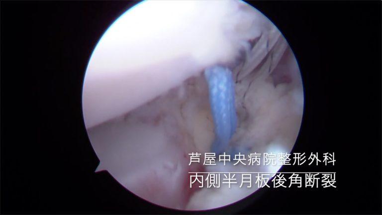 24. 内側半月板後角断裂の修復